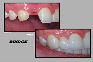 Dental-BridgesMarkhamOntario