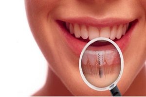 Dental-ImplantsMarkhamOntario